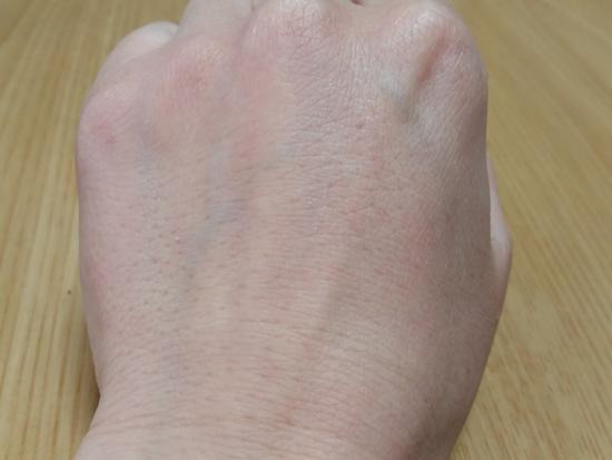 牛乳パック後の手の甲の写真