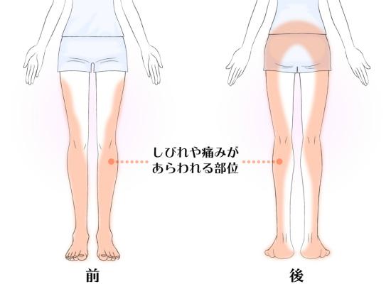 足の痺れは坐骨神経痛の症状かも 5067-1