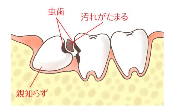親知らずやその手前の歯が虫歯になりやすい5076