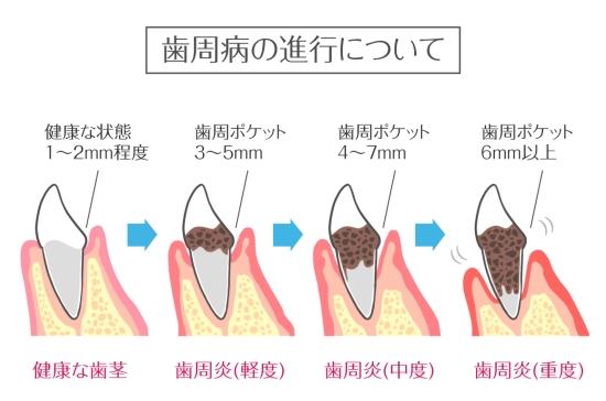 歯周病1207-1