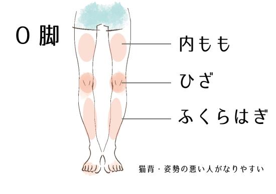 太腿・膝・ふくらはぎの間に隙間ができるО脚0926-1