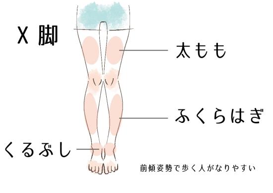 膝はくっついているが太腿・ふくらはぎ・くるぶしが離れているX脚0926-4