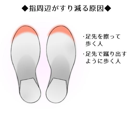 靴のつま先だけがすり減っているケース