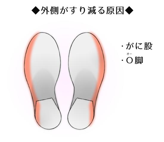 靴の外側が極端にすり減っている人の歩き方