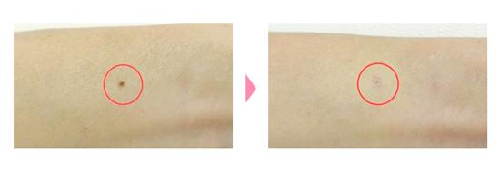 小さなほくろの除去前と除去後の写真