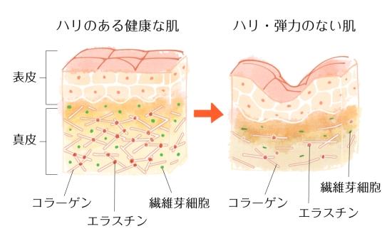 真皮層での糖化はコラーゲンだけではない!さらに老化を進ませる1011-4