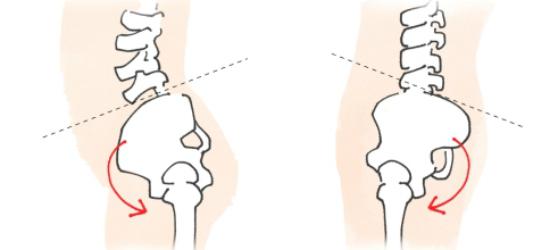 骨盤の前傾後傾タイプ-1110-2