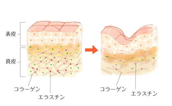 肌細胞1011-4