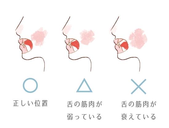 舌の位置 0116-1