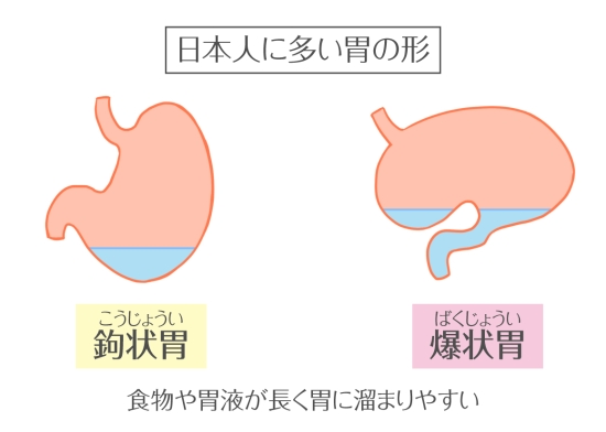 日本人の胃の形0622-5