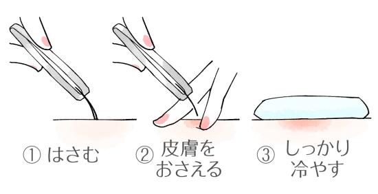 毛抜きを使った脇の自己処理の正しい方法072877