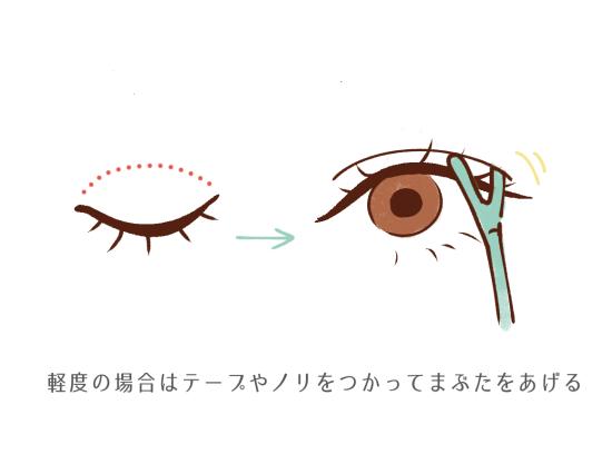 眼瞼下垂は程度によって処置方法が変わる