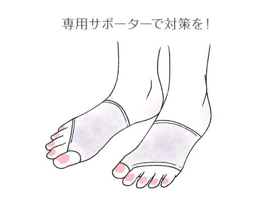 合わない靴によるトラブルはひどくなる前にサポーターを投入