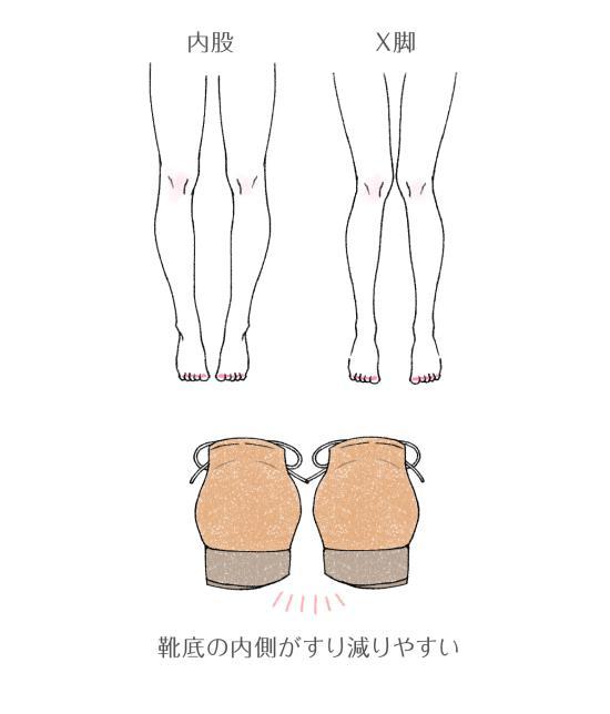 内股やX脚の人の靴のすり減り方