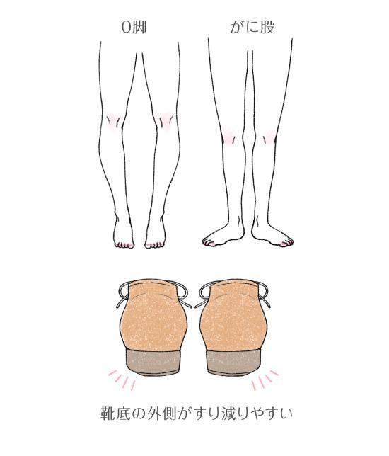 歩き がに股
