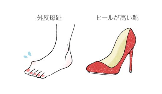 ヒールが高い靴を履く人は、靴底のつま先がすり減りやすい