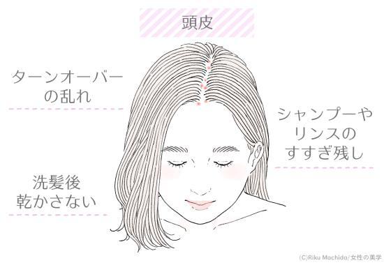 頭皮に吹き出物ができる原因