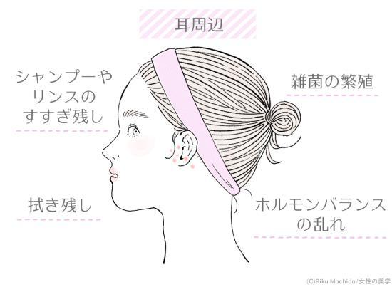 耳周辺に吹き出物ができる原因
